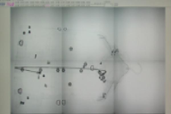 検品・検針(X線検査機)
